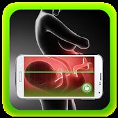 Xray Scanner Pregnancy Prank