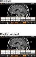 Screenshot of Interactive CT and MRI Anatomy