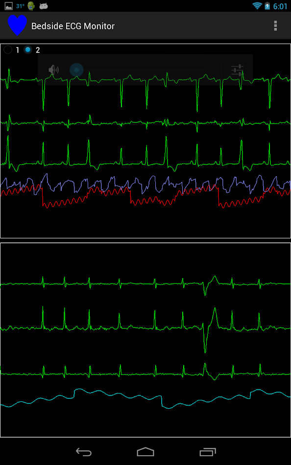 ecg monitoring In contrast to the standard electrocardiogram (ecg), which provides a fixed picture of cardiac electrical activity over a brief duration, ambulatory ecg monitor.
