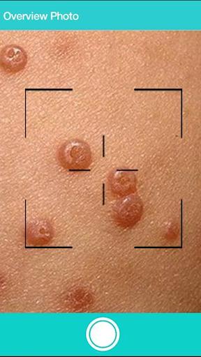 First Derm: Dermatology Online