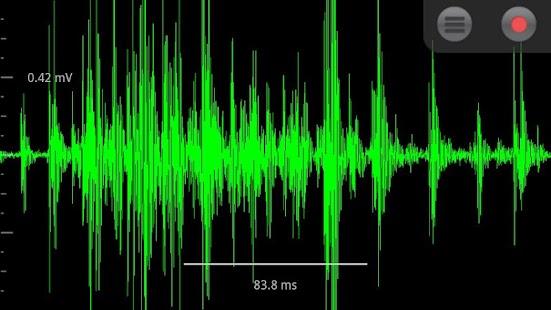 Spike Recorder- screenshot thumbnail
