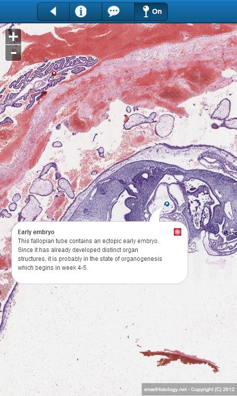 smart Histology Lite- screenshot