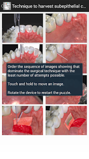 玩免費醫療APP|下載Periodontal Advanced Surgery app不用錢|硬是要APP