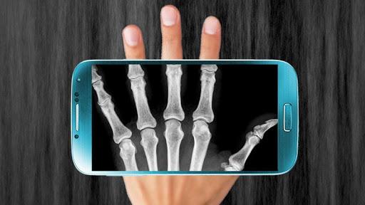 X光扫描器