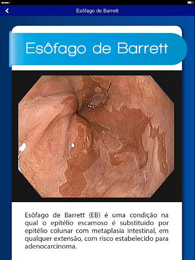 【免費醫療App】Endoscopia HCFMUSP-APP點子