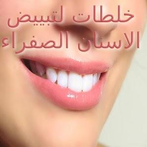 خلطات لتبيض الاسنان الصفراء