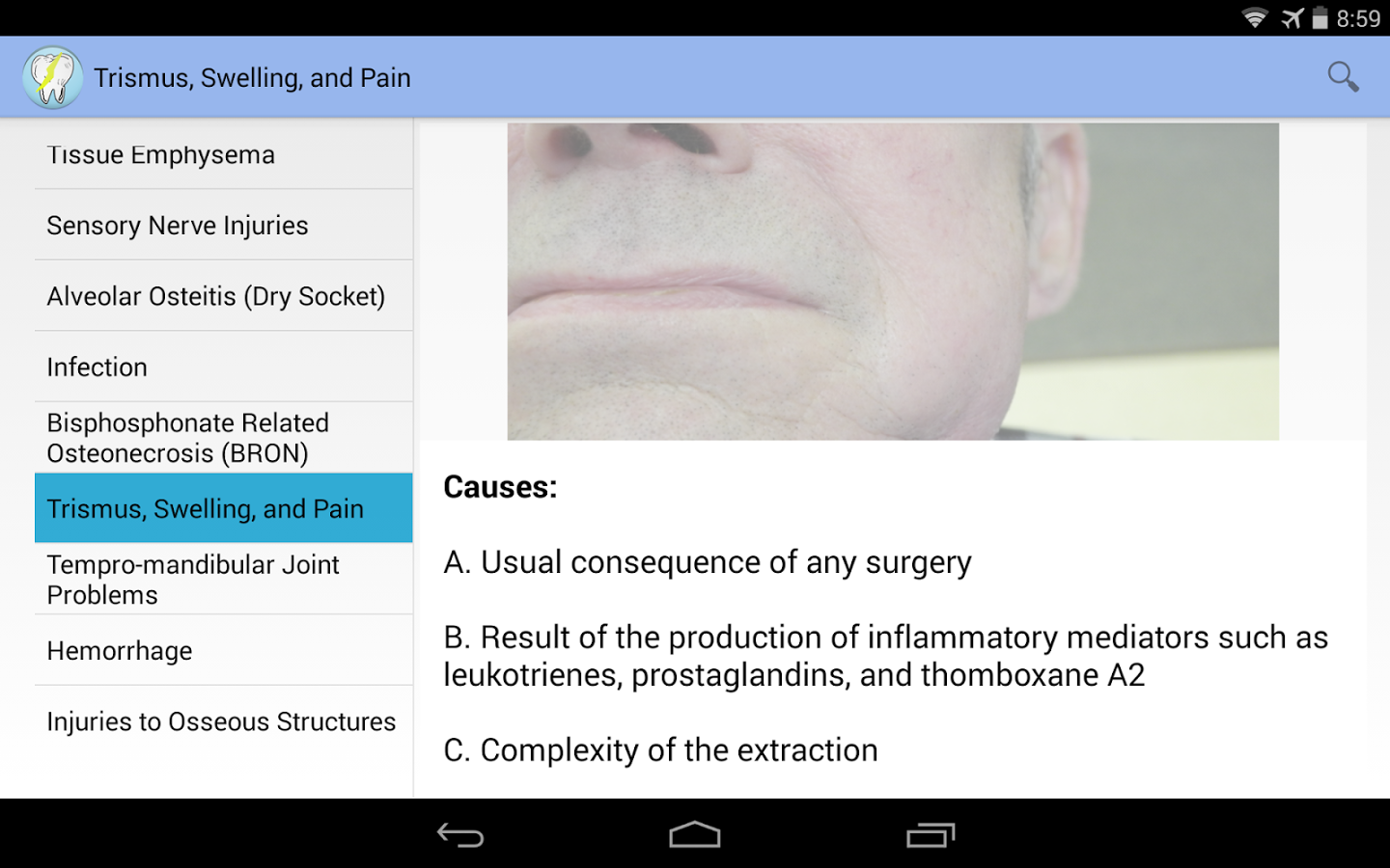 Oral Surgery Complications- screenshot